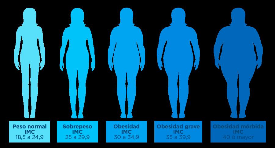 obesidad-4