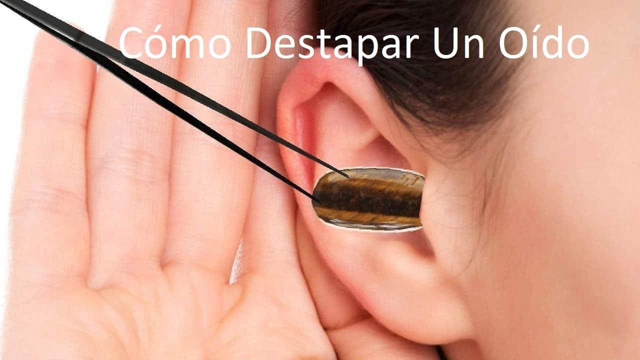 Cómo Destapa Un Oído