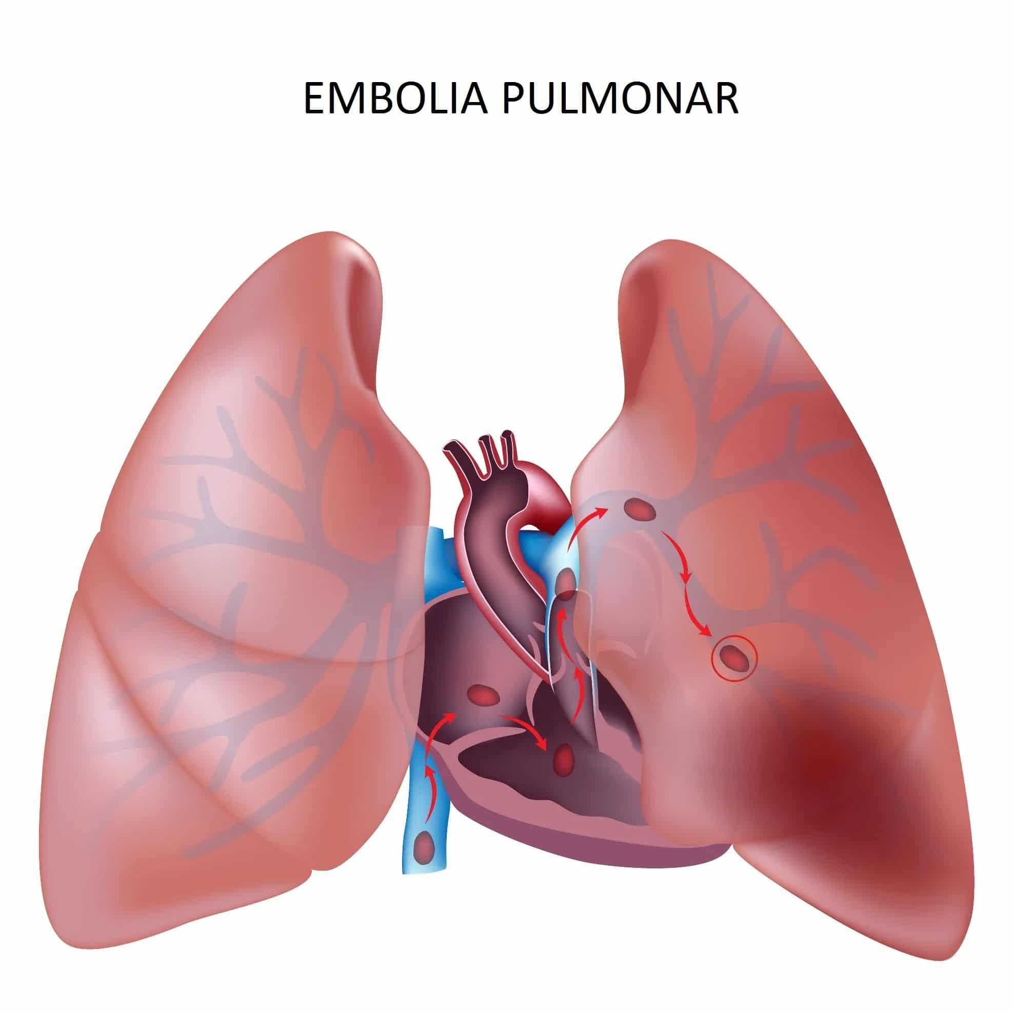 Embolia Pulmonar