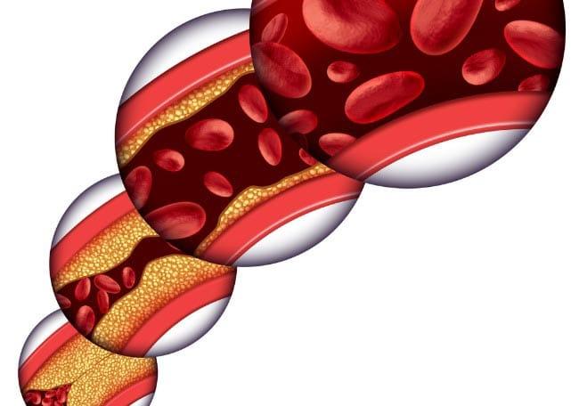 enfermedad-arterial-periferica-2