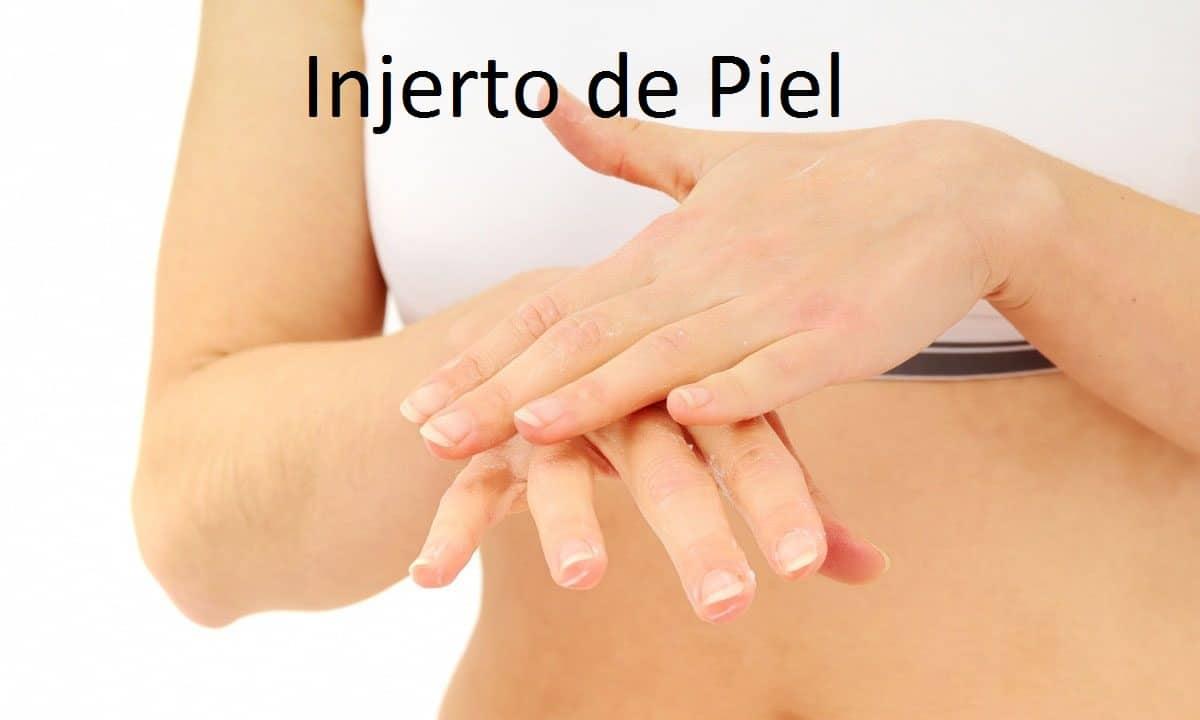 Injerto de Piel