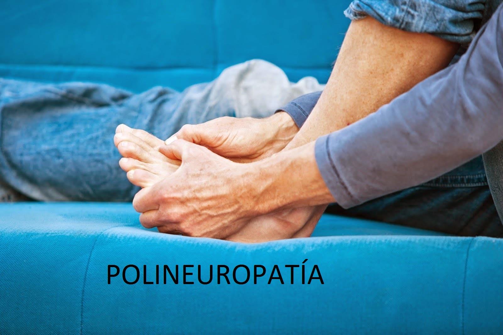 Polineuropatía