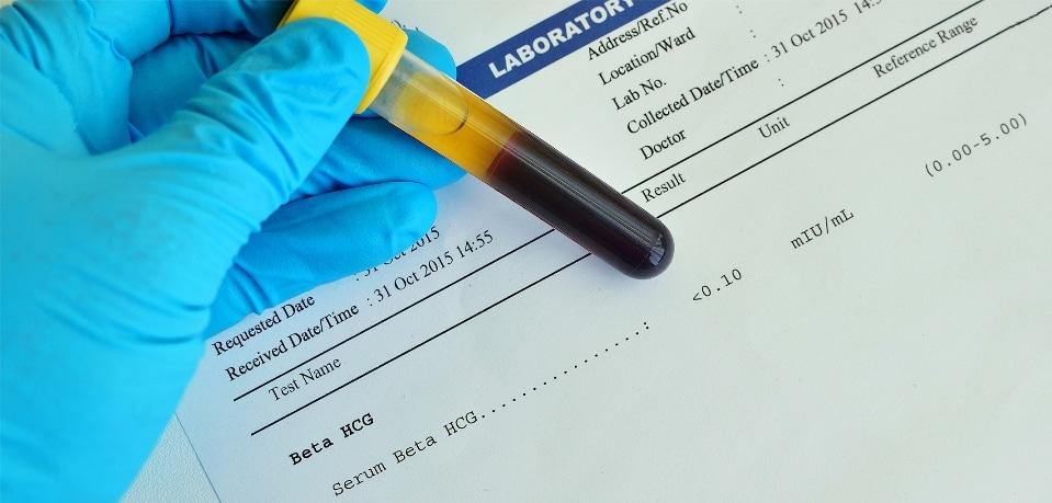 prueba de embarazo de sangre