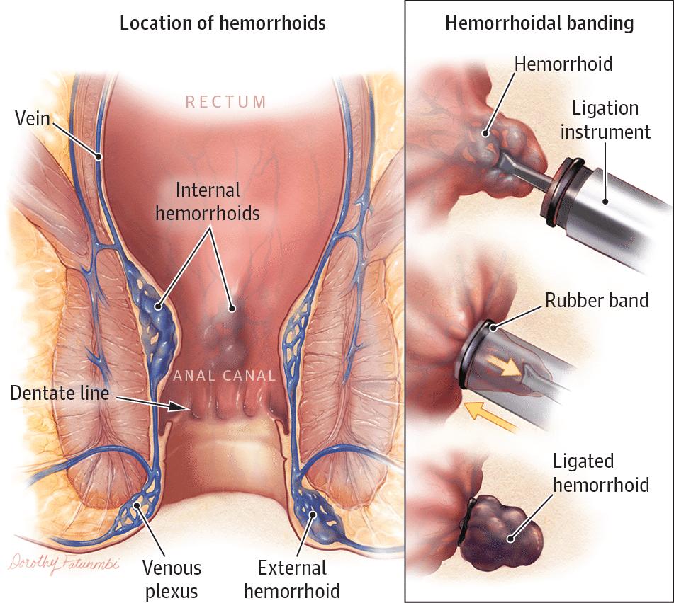 Cirugía-de-Hemorroides-1