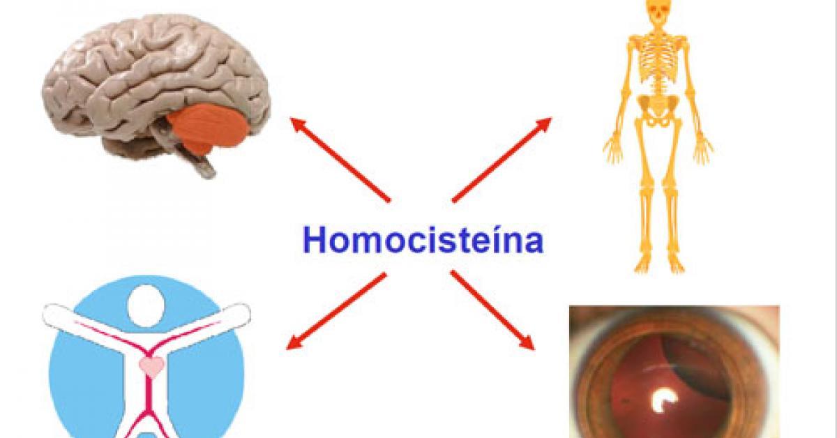 Homocistinuria-1